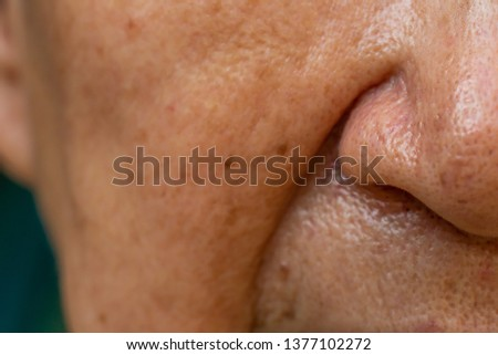 Acne, Small pimple is on senior woman's nose, Deep groove cheeks, Close up and macro shot, Selective focus, Asian Body skin part, Healthcare and Beauty concept