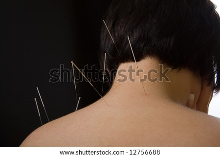 Acupuncture, alternative medicine, needles on back of a woman