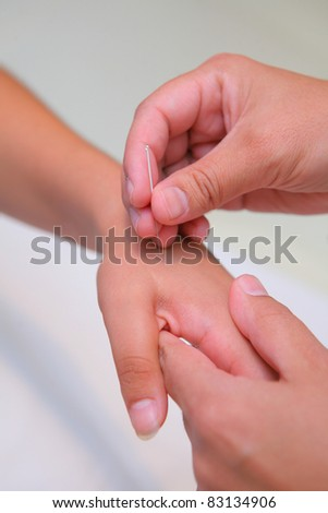 acupuncture - asian treatment inserting a needle into woman hand