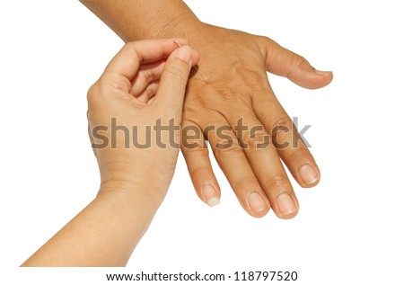Acupuncture hand on the white background - stock photo