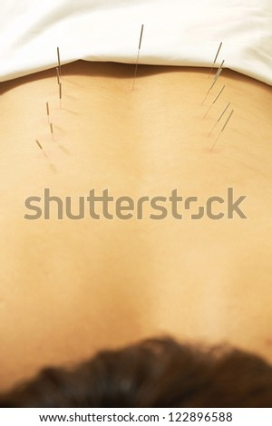 Acupuncture needles punctured in the back of a male patient