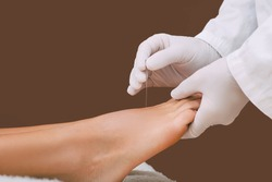 Acupuncture of human foot. Acupuncture needles close up. Acupuncture treatment for chronic pain