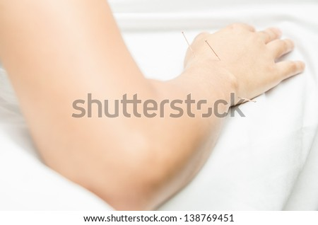Acupuncture patient with needles along arm, Carpal tunnel syndrome treatment, Metacarpal