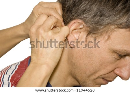 acupuncture treatment - female doctor applying acupuncture needles behind a man's ear