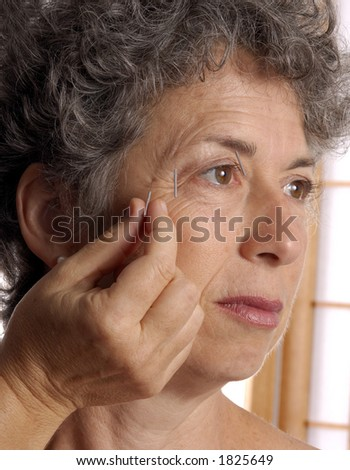 Acupuncturist inserting needles - stock photo