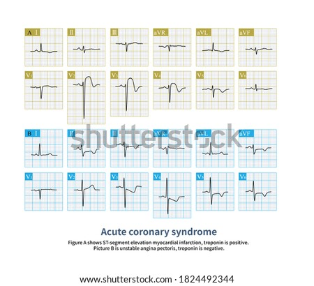 Acute coronary syndrome can be manifested as ST-segment elevation and ST-segment depression.  Foto stock ©