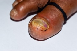 Acute paronychia at big toe and athlete's foot or tinea pedis between toes of Southeast Asian man. Closeup view. Left lateral view.