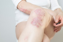 Acute psoriasis on the knees ,body ,elbows is an autoimmune incurable dermatological skin disease. Large red, inflamed, flaky rash on the knees. Joints affected by psoriatic arthritis.