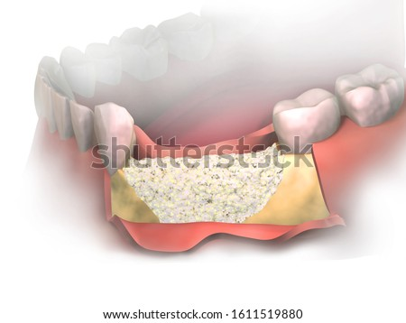 Adding new bone to Bone Loss on lower jaw after tooth removal.  Bone grafting placement in front view. Before putting Membrane on bone graft. 3D illustration. Dental Augmentation Surgery.
