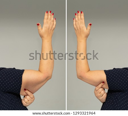 Adipose panniculus in the triceps before and after diet