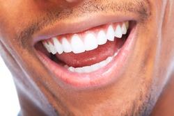 African American man smile. Dental health care.