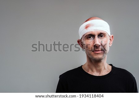 Against a gray background stands a battered and battered man in a black T-shirt with his head wrapped in a bandage Foto stock ©