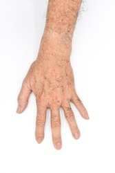 Age spots on hand of Asian elder man. They are brown, gray, or black spots and also called liver spots, senile lentigo, solar lentigines, or sun spots. Isolated on white background.