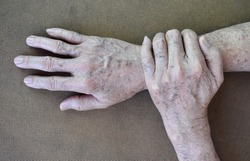 Age spots on hands of Asian elder man. They are brown, gray, or black spots and also called liver spots, senile lentigo, solar lentigines, or sun spots. Concept of hand health.