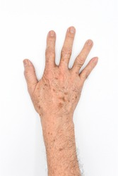 Age spots on right hand of Asian elder man. They are brown, gray, or black spots and also called liver spots, senile lentigo, solar lentigines, or sun spots. First person's view. Isolated on white.