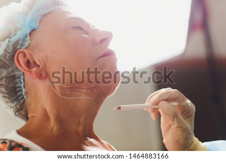 Aged woman doing mesothreads and Thread Lifting, Cosmetology. Cosmetic procedure to eliminate signs of aging. Beauty Face, Facial contour, plastic surgery concept for Age 70-80 years. #1464883166