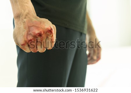 Aggressive violent man in a fight, with a bloody fist. Сток-фото ©