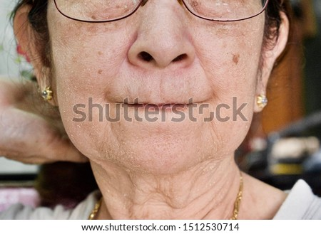 Aging skin folds or skin creases or wrinkles at face especially around mouth and thin lips of Southeast Asian, Chinese elderly woman with Myanmar traditional Thanakha lotion cream applied on the face.