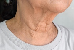 Aging skin folds or skin creases or wrinkles at neck of Southeast Asian, Chinese elderly woman.
