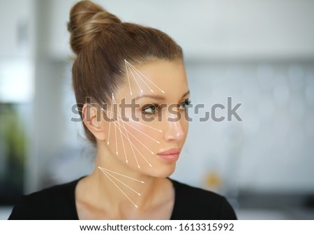 Aging. Thread Lift ,markup.Thread Lift ,markup, thread-lift procedure for facial rejuvenation.