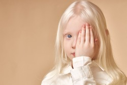 Albino. Cute caucasian little girl with albinism syndrome, she closed one eye and look at camera. natural beauty and people diversity concept