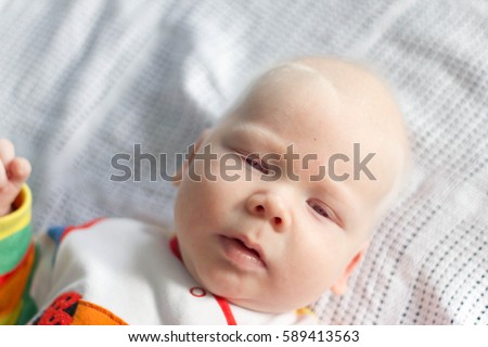 Shutterstock Albino. Cute little baby boy with albinism syndrome.