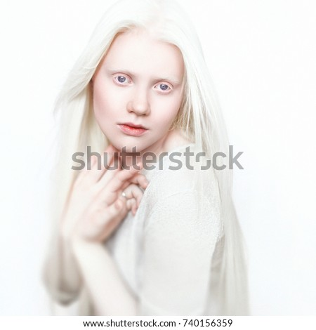 Shutterstock Albino girl with white skin, natural lips and white hair. Photo face on a light background. Portrait of the head. Blonde girl