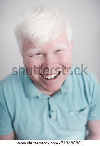 Shutterstock Albino young man portrait. Blond guy isolated at white background. Albinism, pale skin.