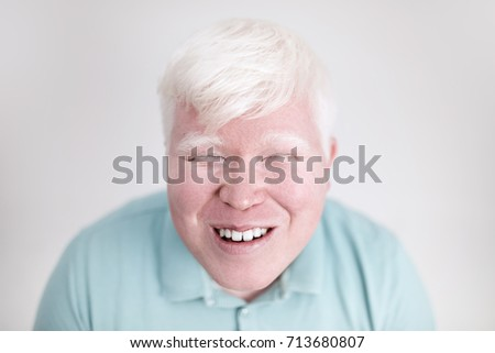 Shutterstock Albino young man portrait. Smiling man isolated at white background. Albinism, pale skin.