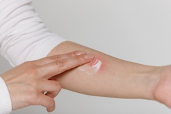 Allergic reaction, itch, dermatitis. Woman is applying cream/ointment on the swell skin against mosquito bites, isolated on grey background, close up.