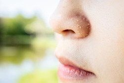 Allergic young woman have eczema dry nose on winter season,female people peeling skin with seborrheic dermatitis,atopic dermatitis symptom on her nose,flaky skin on the face or allergic reaction