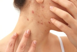 Allergy concept. Young woman with pimples on her face, closeup