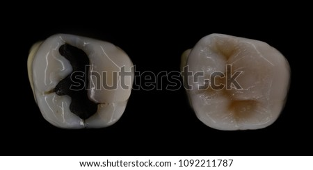 amalgam filling replacement with composite