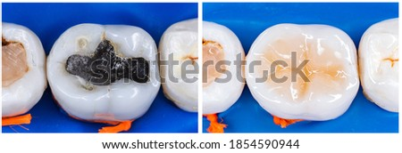 Amalgam (Mercury) filling replacing with ligt cure composite after root canal treatment Stock photo ©