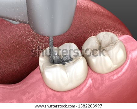 Amalgam removing and preparation for ceramic crown placement. 3D illustration of dental concept Stock photo ©