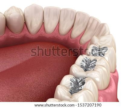 Amalgam restoration. Medically accurate 3D animation of dental concept Stock photo ©