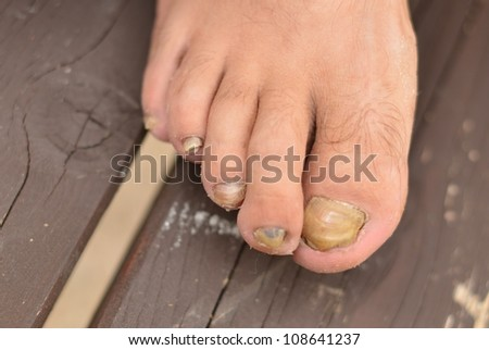 An aggressive toenail fungus (closeup).