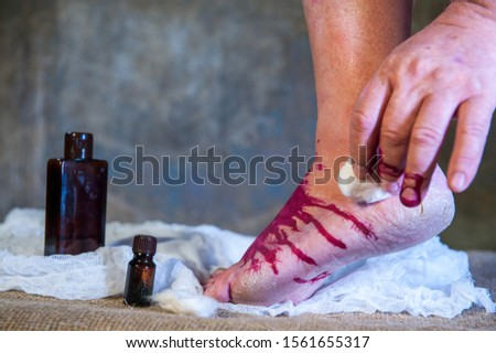 An elderly man with bare legs draws an iodine grid at the site of a tumor and a bruise on his leg. Injured leg, simple home treatment, red iodine.