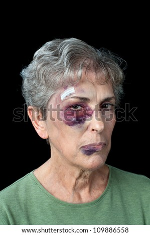 An elderly woman beaten and bruised shows the problems that exist with domestic violence - stock photo