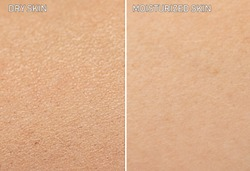 An extreme close up view of human skin, before and after moisturizer is applied. One showing dry skin, and the other showing healthy moisturized skin.