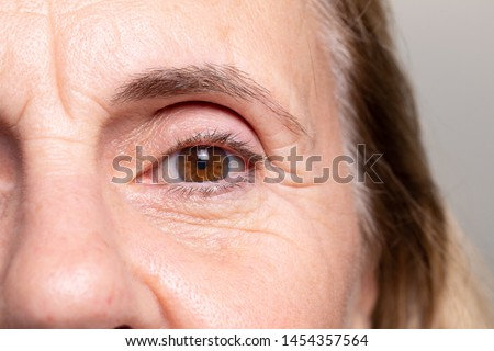 An extreme closeup view on the eye of an elderly woman with brown iris. Heavy wrinkles and laughter lines are seen around the thinning skin.