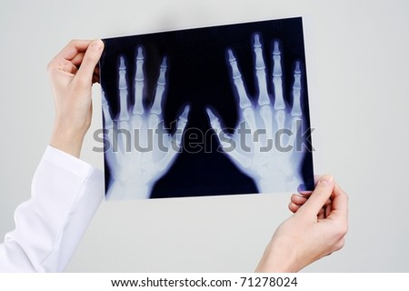 An image of hands holding x-ray