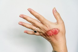An open wound of woman's hand with thermal burn of second degree injury of skin after boiling water on white background. Home accident, boiling tea sloppy behavior. On finger is ring with blue stone
