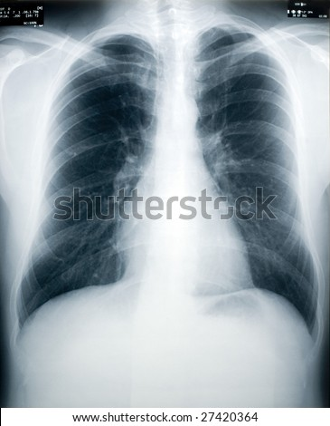 An x-ray of a healthy male chest and lungs (identity numbers and dates have the obfuscated)