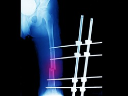 An x-ray of femur showing closed fracture with displacement at shaft of femur. The patient has compartment syndrome and needs fasciotomy and external fixation of the fracture.