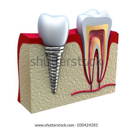 Anatomy of healthy teeth and dental implant in jaw bone. - stock photo