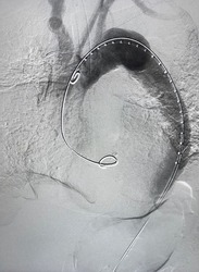 Angiogram of aorta shown aortic dissection type B at descending aorta during Thoracic endovascular aortic repair (TEVAR).