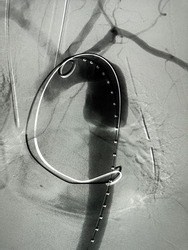 Angiogram of aorta shown descending aortic aneurysm during Thoracic endovascular aortic repair (TEVAR).
