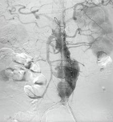 Angiogram of aorta shown Infra-renal abdominal aortic aneurysm (AAA) during endovascular aortic aneurysm repair (EVAR) procedure.