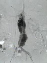 Angiogram of aorta shown Infra-renal abdominal aortic aneurysm during endovascular aortic aneurysm repair (EVAR) procedure at hybrid operating room.